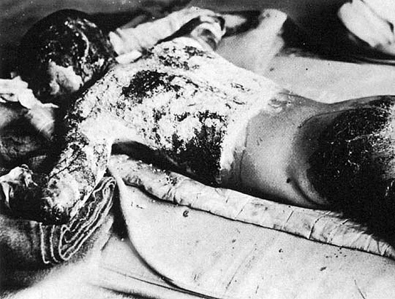 Victim_of_atomic_bomb