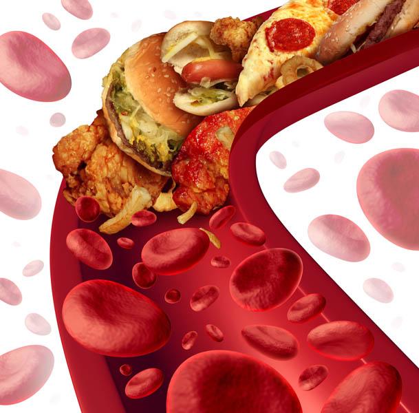 arterie colesteroliche