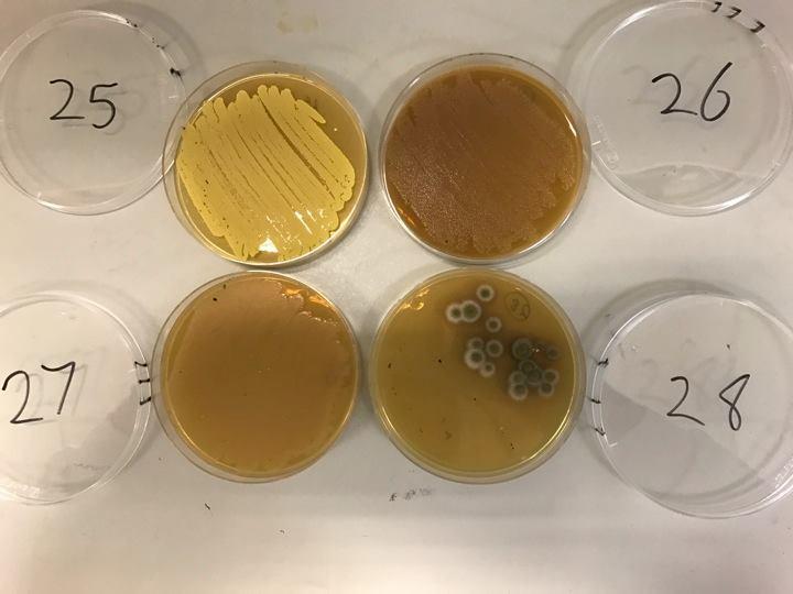 colonie di batteri_2