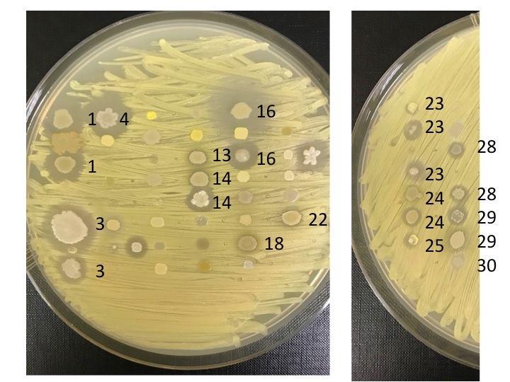 colonie di batteri_3