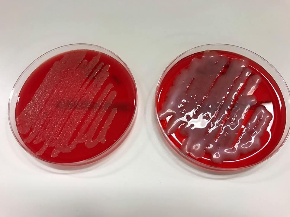 colonie di batteri_4